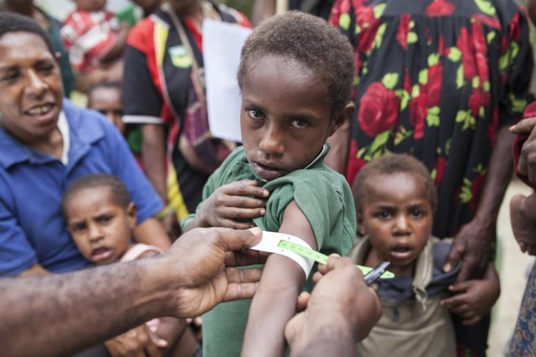 81731-oaus-muac-malnutition-el-nino-papua-new-guinea-rodney-dekker-800x533
